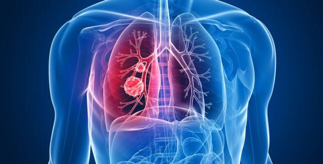 תקווה לחולי סרטן הריאות: תרופה בולמת המחלה