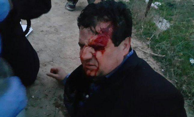 """שוטר נרצח בעת פינוי בתים בנגב; ח""""כ עודה נפצע"""