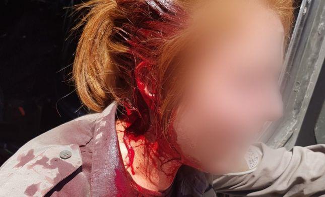 """בושה: נערי גבעות פצעו חיילת מג""""ב בראשה. צפו"""