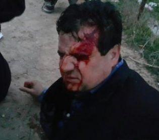 """חדשות, חדשות פוליטי מדיני, מבזקים נסגר התיק נגד השוטרים שהתעמתו עם ח""""כ עודה"""