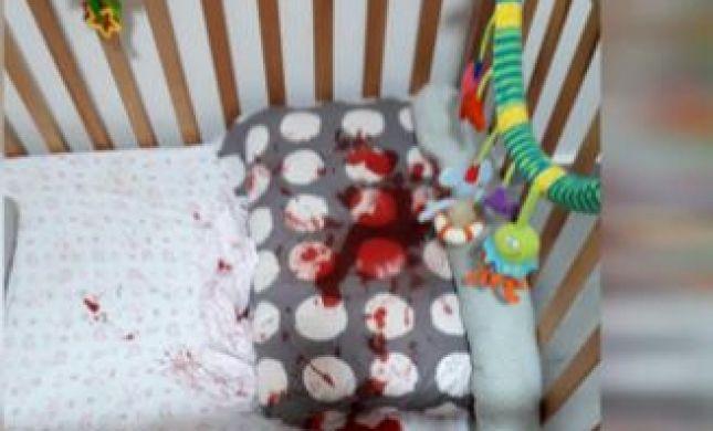 אימה במיטת התינוקת:'רצנו אליה,היא הייתה מלאה בדם'