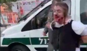 חדשות, חדשות בארץ, מבזקים מזעזע: שוטרים מכים עד זוב דם ילד אוטיסט בירושלים. צפו