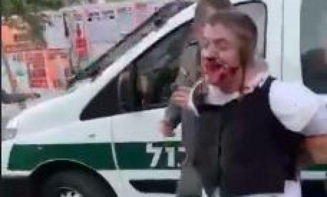 מזעזע: שוטרים מכים עד זוב דם ילד אוטיסט בירושלים. צפו