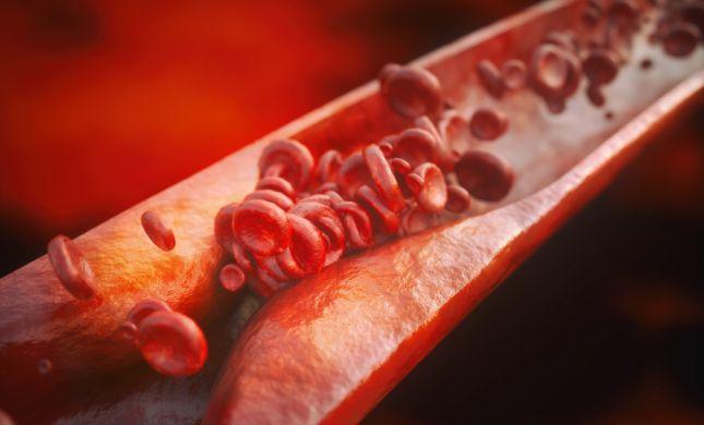 מניעה והורדת כולסטרול: כך נשמרים מפני טרשת עורקים