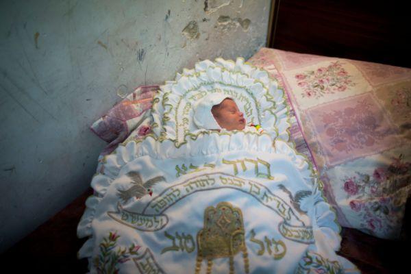 המוהל גרם לתינוק זיהום מוחי; מצבו קשה