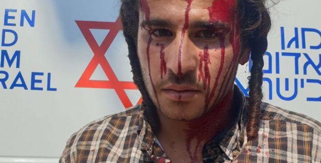 עשרות ערבים התעמתו עם יהודים בשומרון, 4 נפצעו
