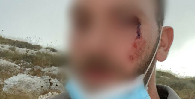 """המשטרה: יהודים תקפו לוחמי מג""""ב בסמוך ליצהר"""
