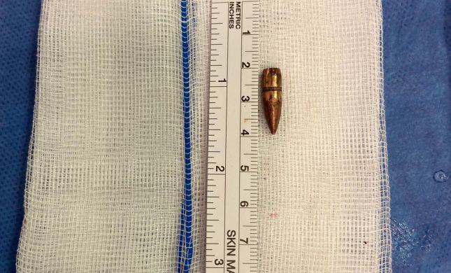 הרופאים הצילו בן 9 מראס אל עמוד שנורה בראשו