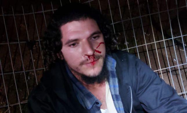 שוב אלימות ביצהר: ג'יפ נגח ברכב, שוטרים תקפו תושב