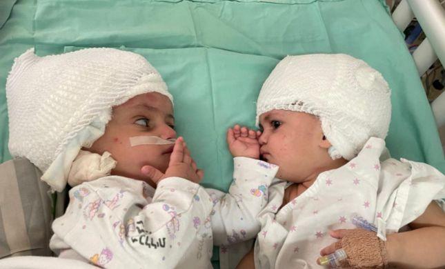 לראשונה בישראל, תאומות סיאמיות הופרדו בניתוח מורכב